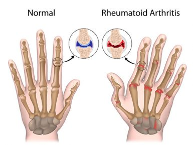 Herbs and Rheumatoid Arthritis